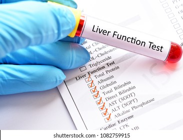 Blood sample for liver function test