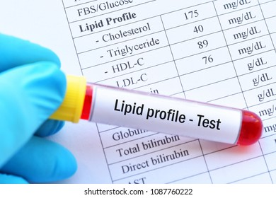 Blood sample with normal lipid profile result
