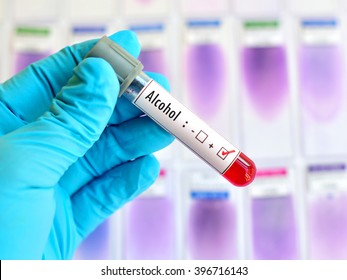 Blood sample positive with alcohol testing