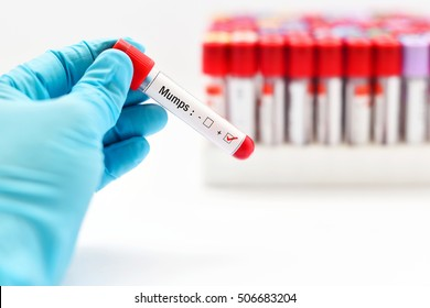 Blood sample positive with mumps virus