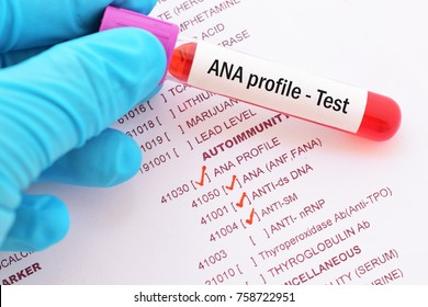 Blood sample with requisition form for ANA profile test, autoimmune diagnosis