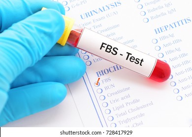 Blood sample with requisition form for fasting blood sugar (FBS) test, diagnosis for diabetes