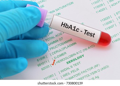 Blood sample with requisition form for HbA1c test, diagnosis for diabetes