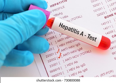 Blood sample with requisition form for hepatitis A virus (HAV) test