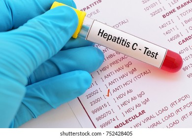 Blood sample with requisition form for hepatitis C virus (HCV) test