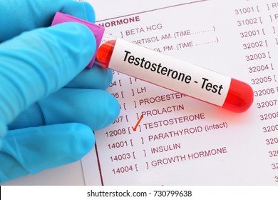 Blood sample with requisition form for testosterone hormone test