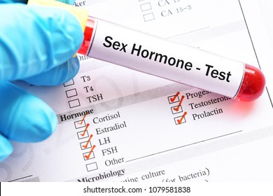 Blood sample for sex hormone testing