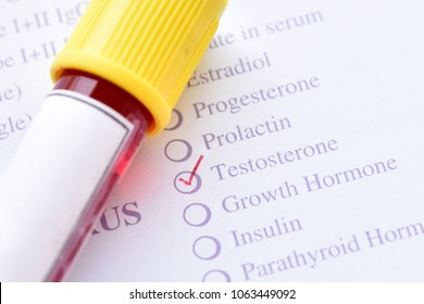 Blood sample for testosterone hormone test