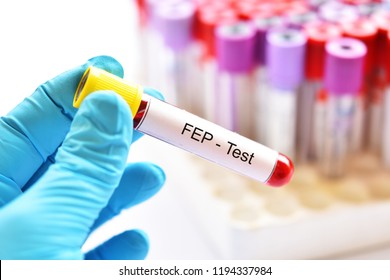 Blood sample tube for FEP or free erythrocyte protoporphyrin test, diagnosis for anemia disease