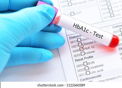 Blood sample tube with laboratory requisition form for HbA1c test, diabetes diagnosis