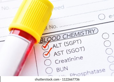Blood sample tube with laboratory requisition form for liver enzyme test
