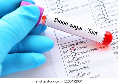 Blood sample tube with laboratory requisition form for glucose test, diabetes diagnosis