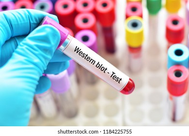 Blood sample tube for Western blot test, confirmatory test for HIV infection
