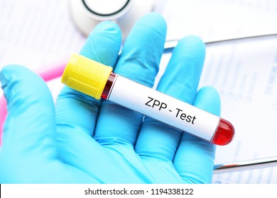 Blood sample tube for ZPP or zinc protoporphyrin test, diagnosis for anemia disease