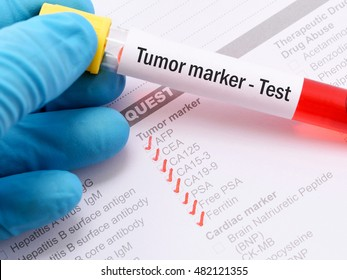 Blood sample for tumor marker test