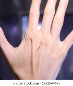 Сapillary blood, scratch mark on a woman hand, fresh cat scratch, damaged skin, dorsum of the hand, back of the hand, cat trace