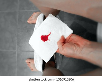 blood stain on a white napkin miscarriage hemorrhoids anus fissure health
