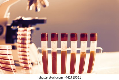 Blood test in medical laboratory, check sugar content diabetes risk.  Toned image