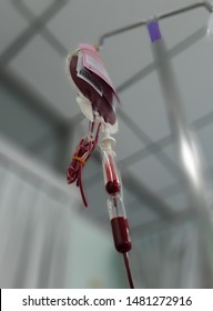 Blood transfusion dripping for patient who has blood loss from major surgery or accident, gastrointestinal/digestive bleeding, severe anemia (intentionally blurred for medical ethics)