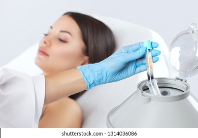 The blood tube is removed from the medical centrifuge for plasma lifting. Prp procedure. Cosmetology and skin care.