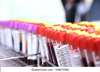 Blood tube for testing in laboratory