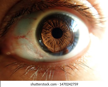 Bloodshot eye / Eye redness occurs when the vessels become swollen or irritated