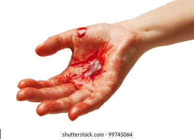 Bloody hand symbolizing injury or crime.