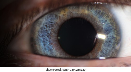 Blue eyes with large iris