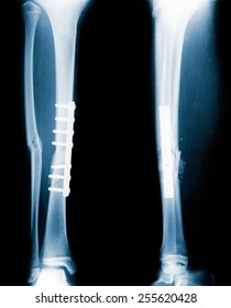 blue film X-ray: femoral fractures treated by inserting steel bones attached.