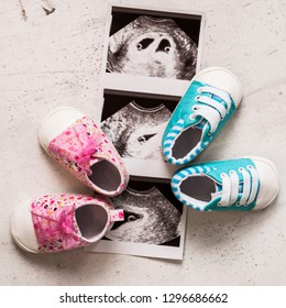 Blue and pink booties next to baby photos with ultrasound in 4th week of pregnancy. Waiting for twins. Son and daughter. Selective focus