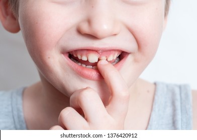 Blue-eyed blond boy laughs and shows the first tooth. children's teeth, loss and fingers pointed at the incisor teeth, children's mouths of child close up, incisor milk tooth missing of kid