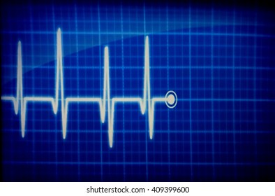 blur electrocardiography monitor