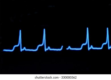 blur image of electrocardiogram on monitor