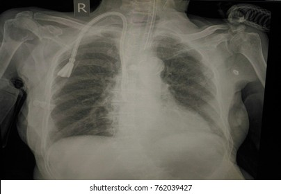Blur Portable Chest X-ray: A old woman case Cardiomegaly with LVE. Image show no pulmonary infitration or congestion normal vasculature and bony thorax Tip ET tube and right subclavian cath in place.