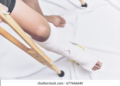 Blur of Top view bandaged leg cast and toes after a running injury.
