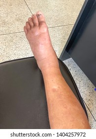 blurred picture of The feet of patients with edema. The presence of water or lymph accumulates leeway within the connective tissue of the body in large quantities.