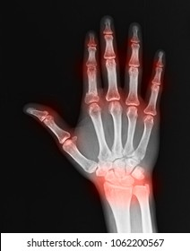 Blurred of Rheumatoid arthritis , Gout arthritis ( Film x-ray both hands with multiple joint arthritis )