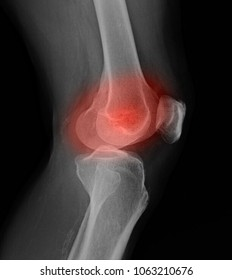 Blurred of X-ray picture showing knee joints with arthrosis