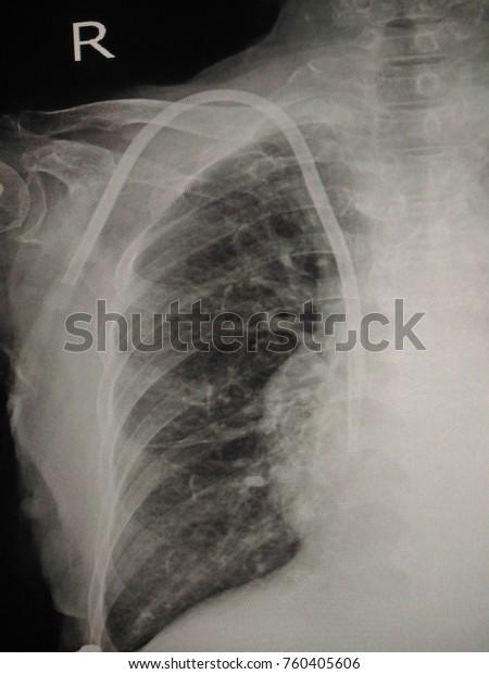 Blurry Central Venous Catheter Dialysis Patient Stock Photo Edit Now 760405606