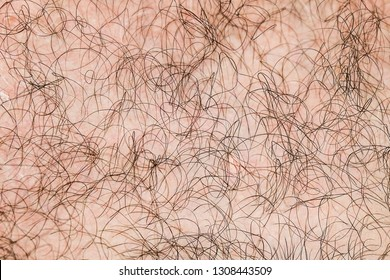 Body hair close-up. Hairy background. Fragment of human hair covering the pink skin.