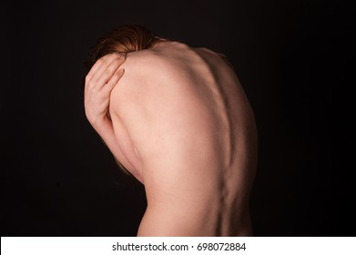 Body part - woman's back, curvature spine