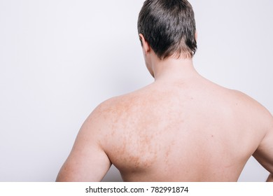 body parts: torso, legs and arms of young men. spots on the body: birthmark, condition. Wallpaper for your desktop and dermatological catalog. genetic diseases of the skin