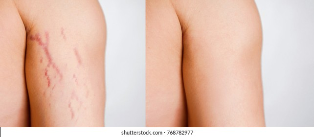 body striae, stria on the arm before and after surgery and procedure