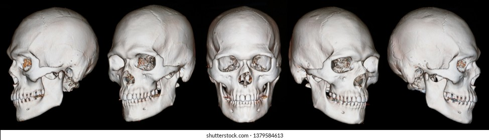 Der Knochen für den Hintergrund besteht aus einem CT-Scan des 3D-Gesichtsknochens des menschlichen Schädels. Dynamischer Hintergrund für Design