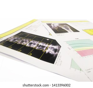 Bone Densitometer hip and spine report paper.on the table and white background,