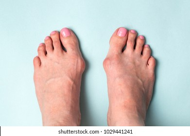 Bone on the foot. Hallux valgus disease.