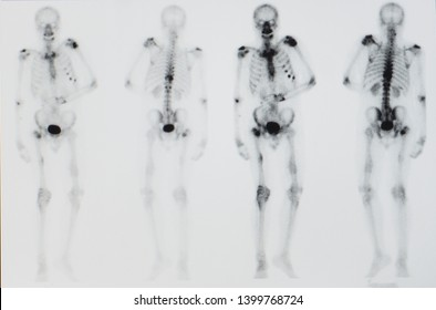 a bone scan image of a patient showing multiple bone and spine metastasis and pathologic fracture. the patient has unknown primary cancer.