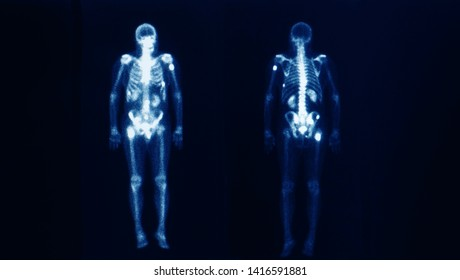 Bone scan image of a patient showing multiple bone and spine metastasis. The image show the outline of skeleton on front and back. Nuclear medicine. Dark background.