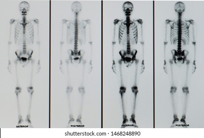 bone scan or scintigraphy image showing multiple metastasis involve spine and other joints in a patient with advanced stage cancer or carcinoma.