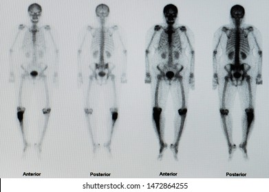 Bone scan or scintigraphy image showing large bone cancer or sarcoma on right leg with no other bone or spine metastasis. The patient need surgery for tumor removal and radiotherapy.